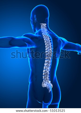 Human spine with spinal plates - stock photo