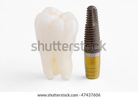 Human tooth and titanium implant - stock photo