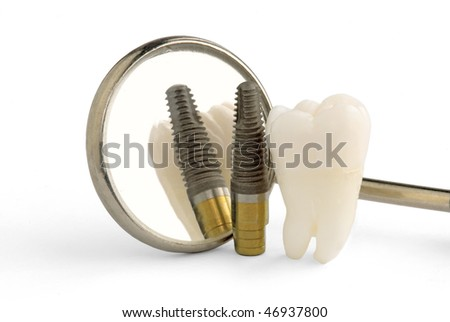 Human tooth, titanium implant and dental mirror - stock photo