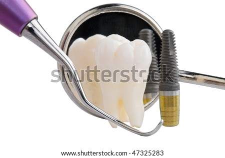 Human tooth, titanium implant, dental mirror and probe isolated on white background - stock photo
