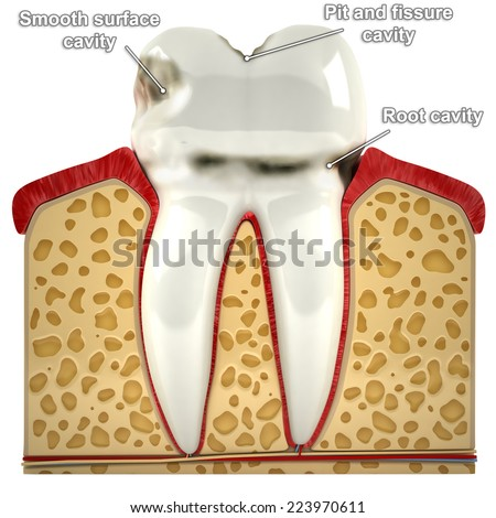 Human tooth, with types of caries (3d model) - stock photo