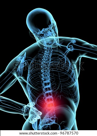 Human X-ray pain in the back or dorsalgia - stock photo