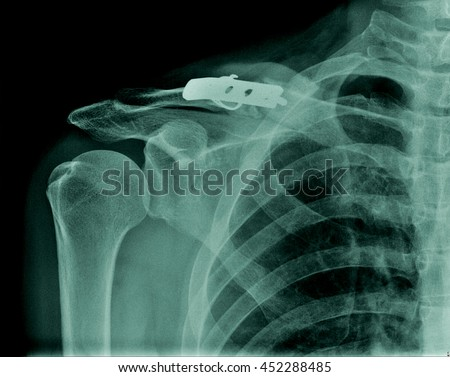 Human x-ray right clavicle fracture post operation by plate fixation and other normal structure: rib, shoulder joint, right side of lung  - stock photo