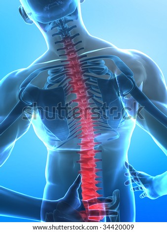 human x-ray spine - pain from foot to head - stock photo