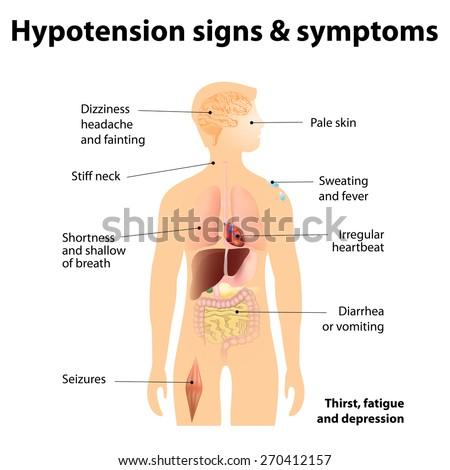 hypotension signs symptoms low blood pressure stock illustration, Skeleton