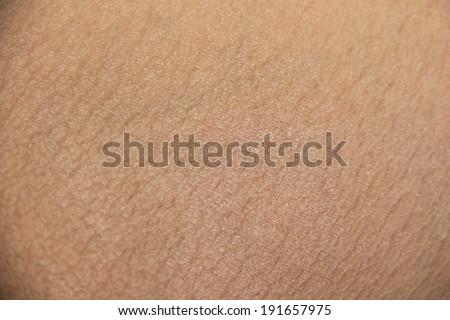 Ichthyosis (fish skin) disease - stock photo