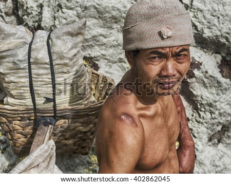 Ijen Crater, Indonesia - May 25: Sulfur miner showing his shoulder scars inside the crater of Kawah Ijen volcano in East Java, Indonesia.  - stock photo