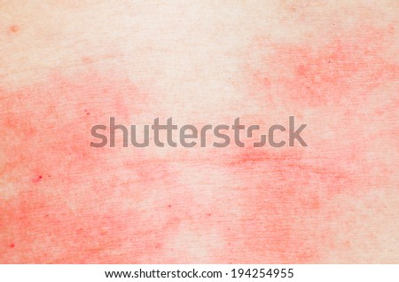 ill allergic rash dermatitis eczema skin texture - stock photo