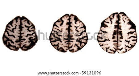 illustration brain of magnetic resonance isolated on white background - stock photo