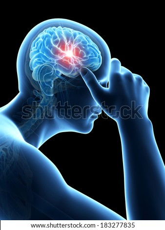 illustration of a man having a headache - stock photo