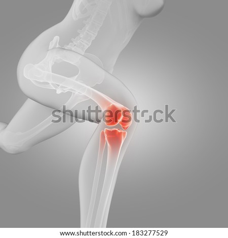 illustration of a running woman - painful knee - stock photo