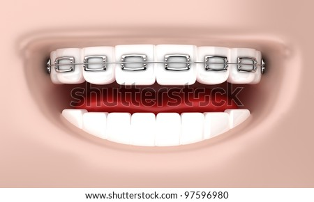 Illustration of a smile of the person with bracket on teeth - stock photo