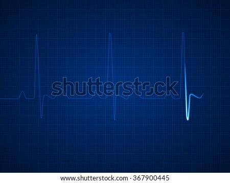 Illustration of an electrocardiogram (ECG / EKG). Pulsating line.  - stock photo