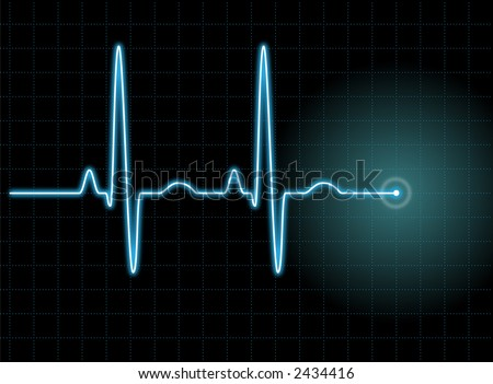 Illustration of an electrocardiogram (ECG) #1.  See my portfolio for more. - stock photo