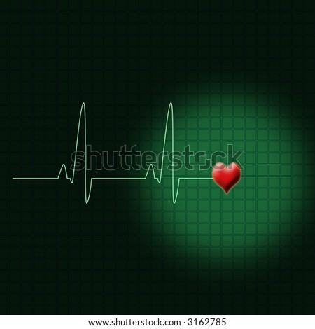 Illustration of an electrocardiogram or a ECG
