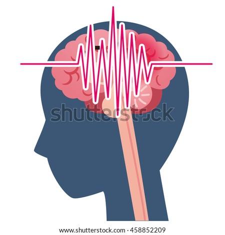 illustration of headache image - stock photo