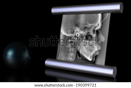 illustration of skull  - stock photo