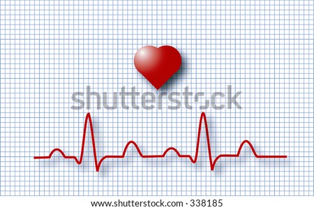 Illustration of the electrical activity of the human beating heart - stock photo