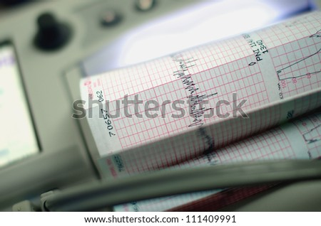 Image of a heart beat monitoring equipment with graph - stock photo