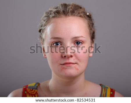 Image of acne on face - stock photo