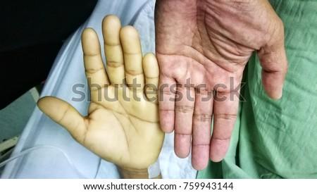 image comparing severe anaemia normal stock photo