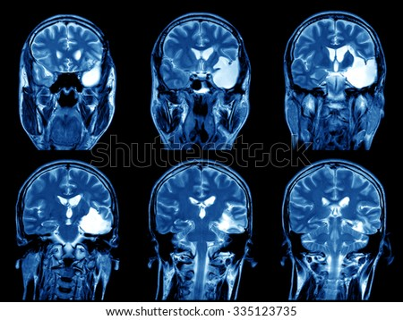 Imaging of the brain on x-ray - stock photo