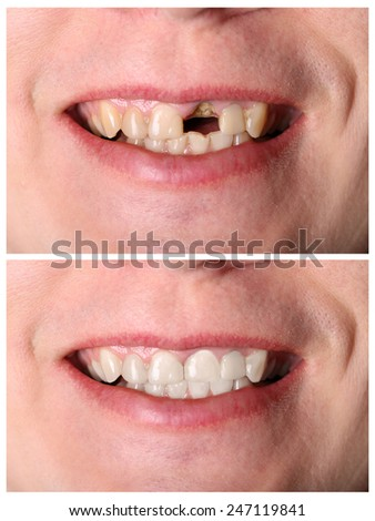 Incisive tooth restoration before and after treatment - stock photo