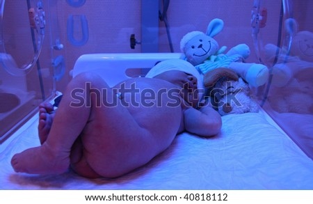 incubator, light treatment for jaundice - stock photo
