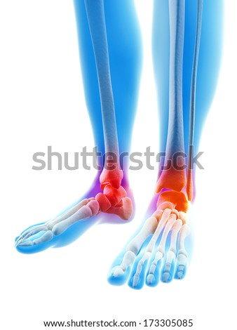 inflamed, painful ankles - stock photo