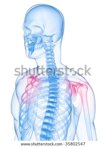 inflamed shoulders - stock photo