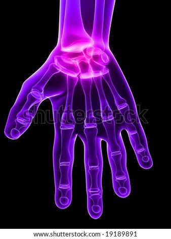 inflammated hand - stock photo