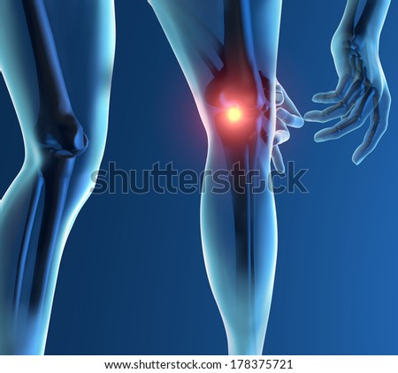 Inflammation pain knee skeleton x-ray