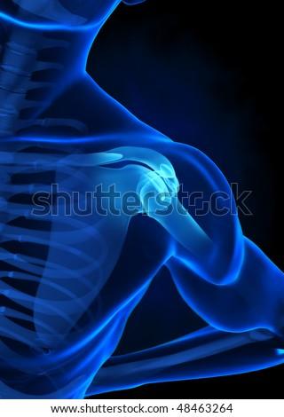 Injured arm concept - stock photo