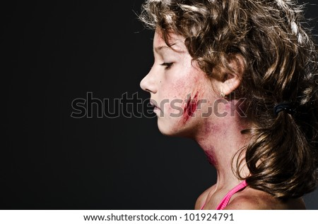 Injured child posing as victim of domestic violence - stock photo