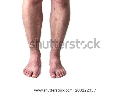Insect bites on the legs of man