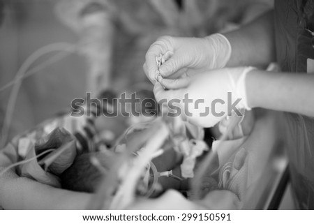 Intensive care unit, care for a premature infant - stock photo