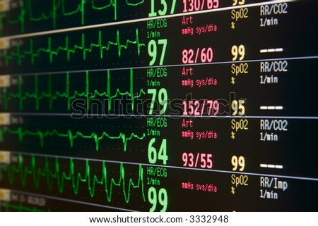 intensive care unit lcd monitor for several patients - stock photo