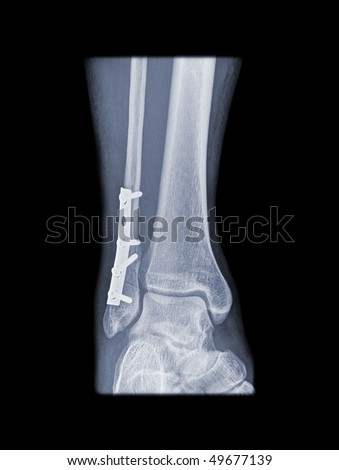 internal fixation of a broken leg with plate and screws - stock photo