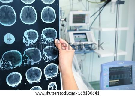Interpretation of tomography of the brain in the ICU - stock photo