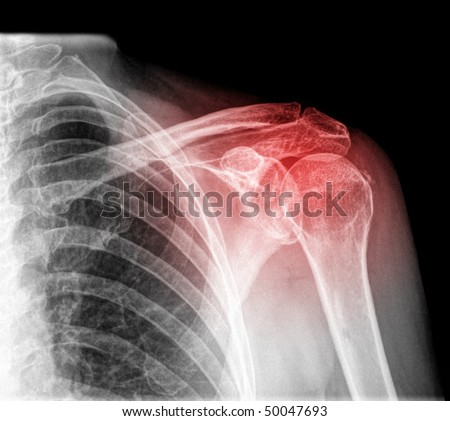 intrinsic shoulder pain isolated - stock photo