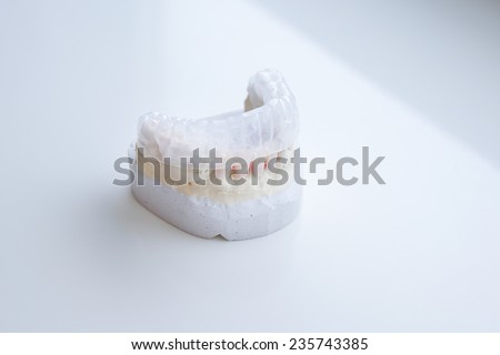 Invisalign, invisible plastic teeth aligner on a dental plaster mold  - stock photo