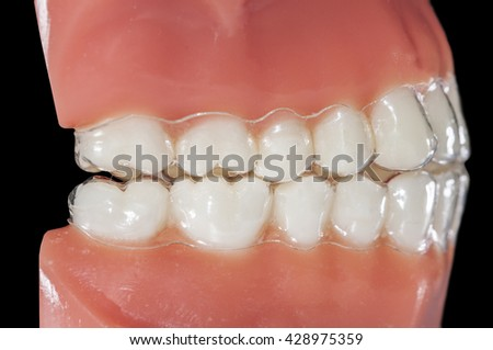 invisible orthodontic aligners for treatments bruxism grinding teeth - stock photo