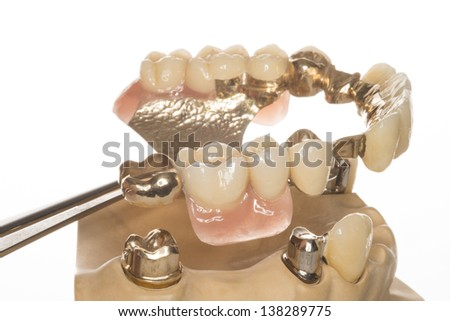 isolated denture from a dental laboratory - stock photo