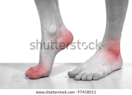 isolated disease of the feet - stock photo