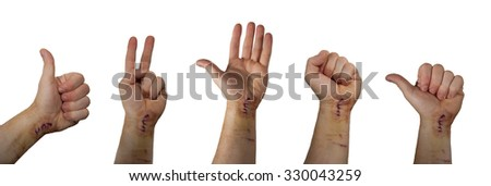 isolated views of the hand with fresh scar