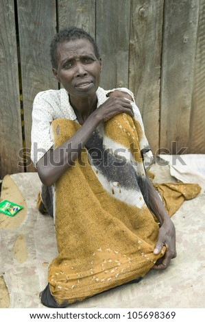 """JANUARY 2007 - """"Irene"""", infected with HIV/AIDS, sits on ground at the Pepo La Tumaini Jangwani, HIV/AIDS Community Rehabilitation Program, Orphanage & Clinic. - stock photo"""