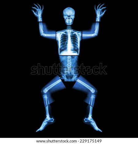 Jigsaw human x-ray ( whole body : head skull face neck spine shoulder arm elbow joint forearm wrist hand finger chest thorax heart lung rib abdomen back pelvis hip thigh knee leg ankle foot heel toe ) - stock photo