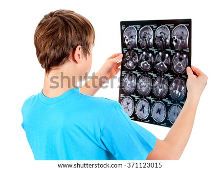 Kid holding x-ray scan on the White Background - stock photo