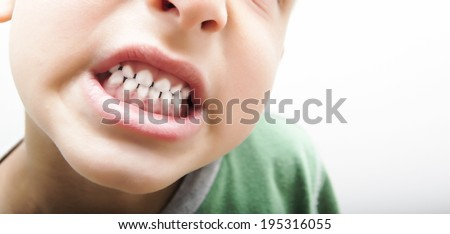 Kid showing teeth