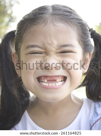 Kid with front teeth loss: A little girl child showing front teeth loss with big smile  - stock photo